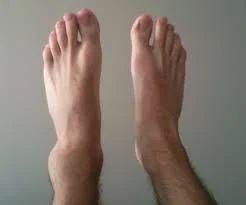 Ankle & Foot Injuries