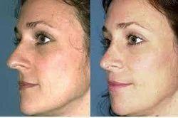 Cheek Augmentation Treatment