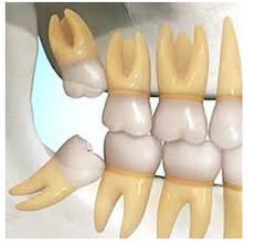 Removal of Impacted Teeth Services