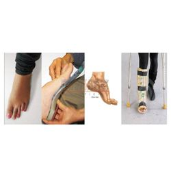 Orthopedic Treatment