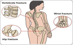 Women's Bone Health