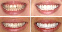 Teeth Whitening & Bleaching