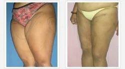 Mega Liposuction Surgery Service