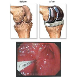 Joint Repacement/Endoscopy