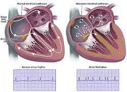 Cardiac Issues Services