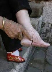 Heel Pain Flat Foot in New Sadashiv
