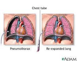 Exploratory Thoracotomy
