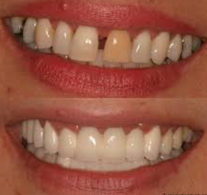 Image result for Cosmetic Dental Treatment?