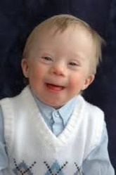 Children With Down Syndrome Disorders