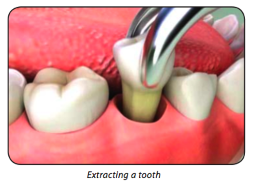 Tooth Extraction Oral Surgery Dental Treatment Services Dental Planet Ahmedabad Id 8230429330
