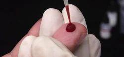 Blood Test Home Visit