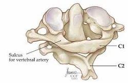 CV Junction pathology