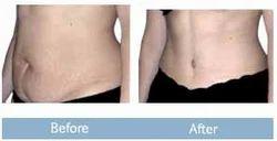 Abdominoplasty (Tummy Tuck) - Body Procedure