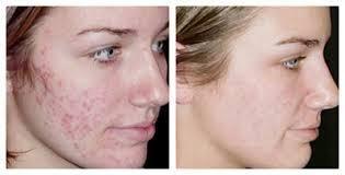 laserbehandling acne