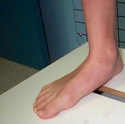 Flat Feet Orthopedic Treatment
