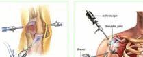 Arthoscopy Treatment Services