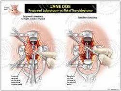 thyroid lobectomy
