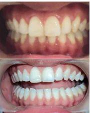 Teeth Whitening/Bleaching