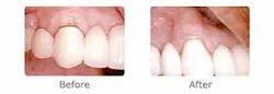 Gum Therapy Periodontics