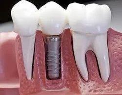 Dental Implants Service