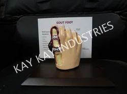 Gout Model
