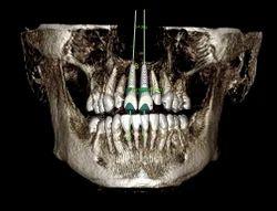 Dental Implant Surgery Scan Dental Clinic