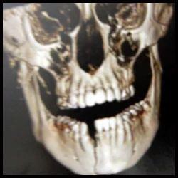 Trauma Or Fractures Of Facial Bones
