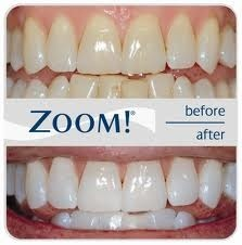 Zoom In - Office Tooth Whitening Treatments