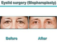 Blepharoplasty Eyelid Surgery