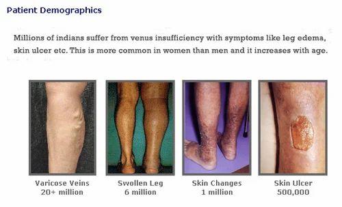 Vene varico-simptome și diagnostic