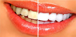 Teeth Cleaning & Whitening Service