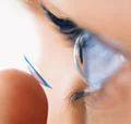 Customized Cataract Surgery