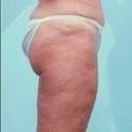 Abdominoplasty Plastic Surgery Services