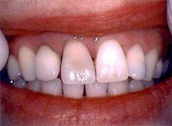 Dentures Dental Treatment Services