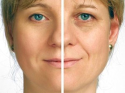 Dermal Fillers/Juvederm, Cosmeceutical Services | Greater