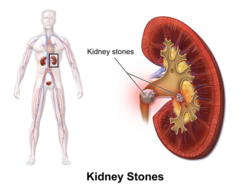 Kidney Stone Removal In Hyderabad