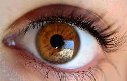Cataract Surgery With Femto Laser/micro Phaco