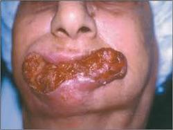 Oral Cancer Treatment in Haridwar, Kankhal by Sumukham Oro