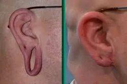Ear Lobule Surgery