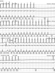 Holter  Avnrt With Pauses