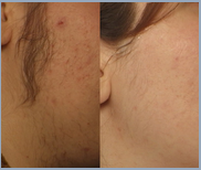 Lasers  Hair Removal