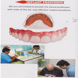 Implant Prosthesis Dental Service
