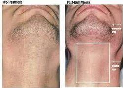 Permanent Hair Reduction Treatment