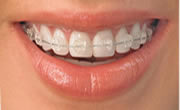 Braces Or Orthodontic Treatment Services