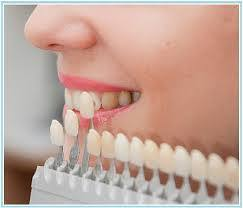Cosmetic Dentistry Treatment Service