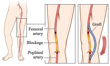 Femoral Popliteal Bypass in Thrissur | ID: 8789905788