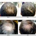 Hair Fall Treatment Service