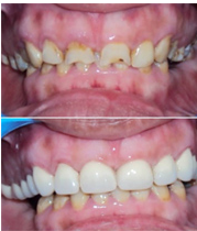 Complete Smile Makeovers/ Full Mouth Rehabilitation