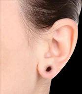 Ear Lobe Repair Services