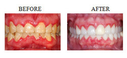 Bleeding Gums/Periodontal Therapy